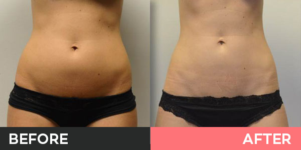 vaser liposuction before and after