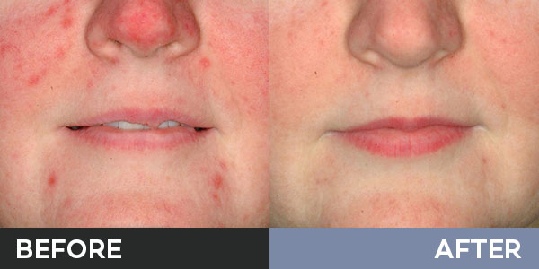 skin needling before and after