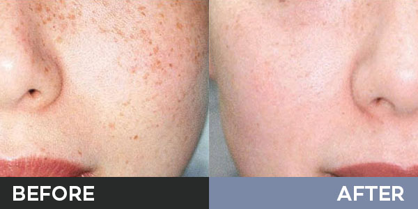 picosure before and after