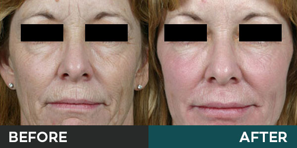 stem cell transfer before and after