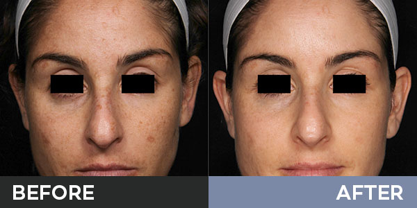 skin resurfacing before and after