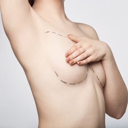 Breast Implants Burwood, Sydney