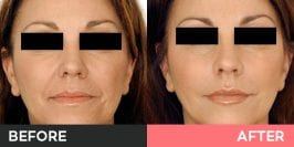 Dermal Fillers  Burwood, Sydney