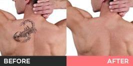 Cosmetic Tattoo Removal Burwood, Sydney