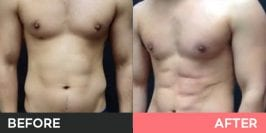 Vaser High Definition Lipo Burwood, Sydney