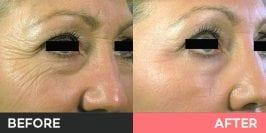 Pellevé Wrinkle Reduction System Burwood, Sydney